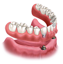 full mouth dental implants in tampa